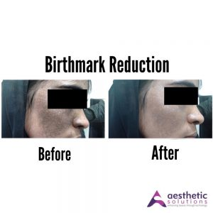 birthmark reduction
