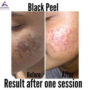 black peel treatment
