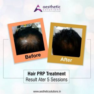 hair prp treatment
