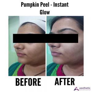 pumpkin peel instant glow