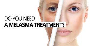 MELASMA: A Pigmentary Disorder